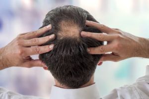 Finasteride Are The Risks Worth It Mens Pharmacy Bog
